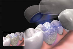 KTR Dental Lab iTero